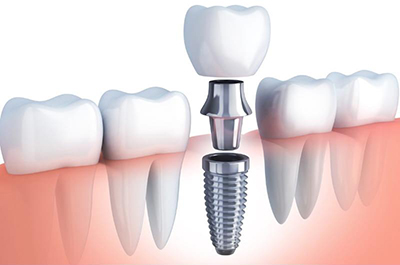 Diagram of dental Implants being attached together in River Forest, IL at Cameo Dental Specialists serving the Chicago Communities.