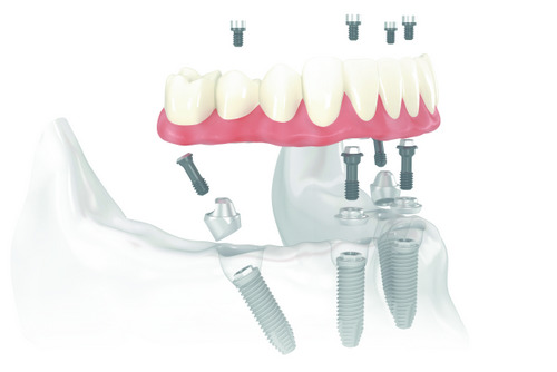All-on-4 Implant Diagram at Cameo Dental Specialists