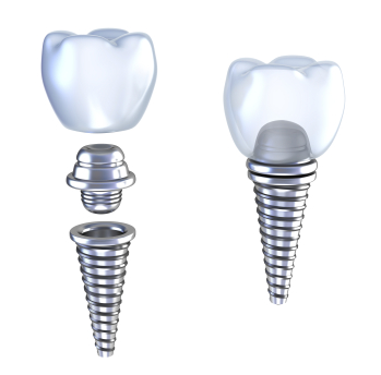 Diagram of dental Implants beign attached together in River Forest, IL at Cameo Dental Specialists serving the Chicago Communities.