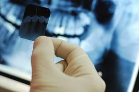 Dental Xray images held in hand with x-ray background at Cameo Dental Specialists serving the Chicago Communities.