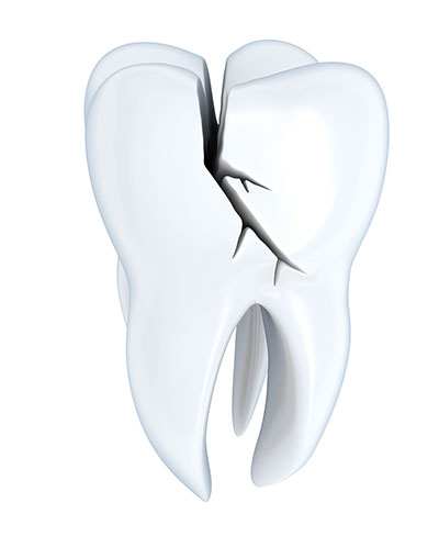 What Are the Symptoms of Fractured Teeth?
